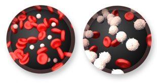 Sintomas-e-Tratamento-da-Leucemia-1