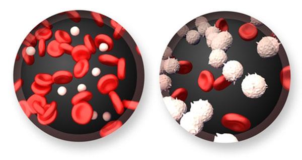 Dois exames para detecção da leucemia são incorporados à tabela do SUS