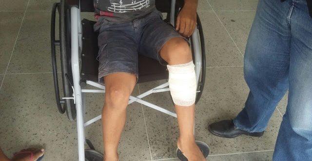 Criança de oito anos foi atingida por um tiro na perna quando brincava na calçada de casa (Foto: Caio Vale/Mossoró Notícias).
