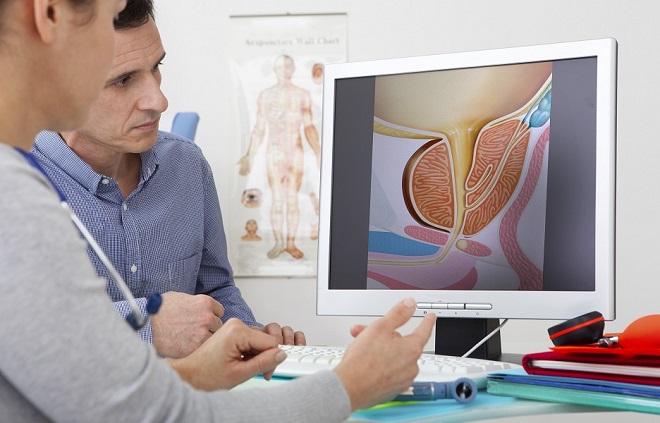 """""""Hoje em dia conseguimos diagnosticar o câncer de próstata mais cedo"""", afirma urologista"""