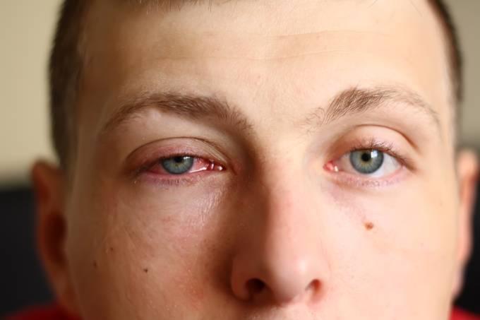 Se a contaminação ocorrer, é indicado ir ao médico, além de alguns cuidados como lavar os olhos e fazer compressas com água fria.