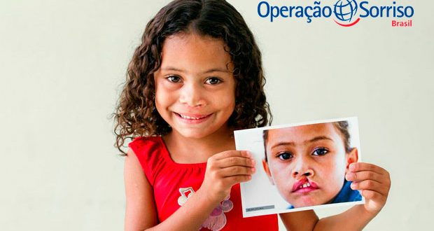 Seleção de pacientes acontecerá dia 14 de janeiro; Cirurgias estão marcadas para o período de 16 a 19 do mesmo mês.