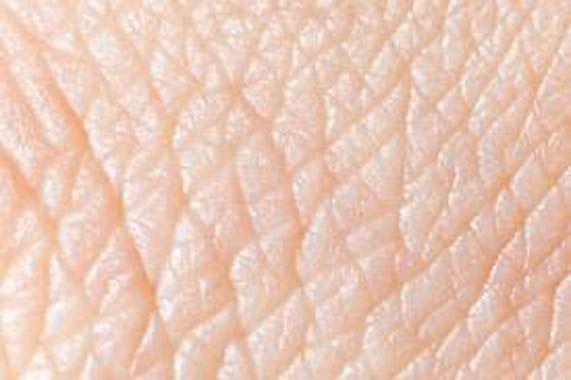 Brasil envia pele humana para vítimas de acidente no Peru