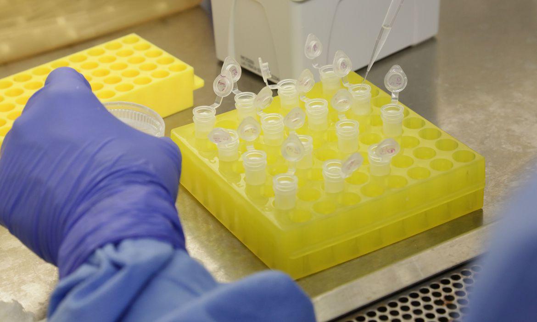 diagnostico_laboratorial_de_casos_suspeitos_do_novo_coronavirus_2801209411