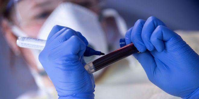 Covid-19: médicos dizem acreditar em subnotificação em casos e mortes